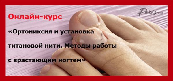 ortoniksiya-i-ustanovka-titanovoj-niti